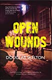 img - for Open Wounds (Davie Mccall) book / textbook / text book