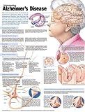 Anatomical Chart Company Understanding Alzheimer's Disease Anatomical Chart