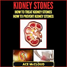 Kidney Stones: How to Treat Kidney Stones: How to Prevent Kidney Stones Audiobook by Ace McCloud Narrated by Joshua Mackey