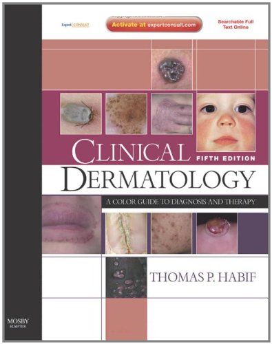 Clinical Dermatology: A Color Guide to Diagnosis and...