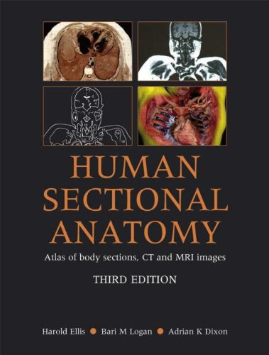 Human Sectional Anatomy: Atlas of Body Sections, CT and...
