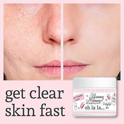 yummy-mummy-spots-pimples-cream-despues-de-manchas-de-nacimiento-y-espinillas-crema-tratamiento-tez-