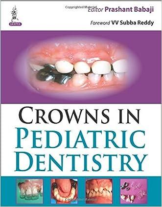 Crowns in Pediatric Dentistry