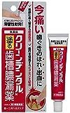 【第3類医薬品】クリーンデンタルN 16g ランキングお取り寄せ