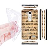 Head Case Designs Mozart Music Sheets Soft Gel Back Case Cover for LG L Fino D290N Dual D295