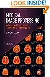 Medical Image Processing: Advanced Fu...