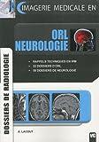 echange, troc A. Lacout - ORL neurologie : Dossiers de radiologie