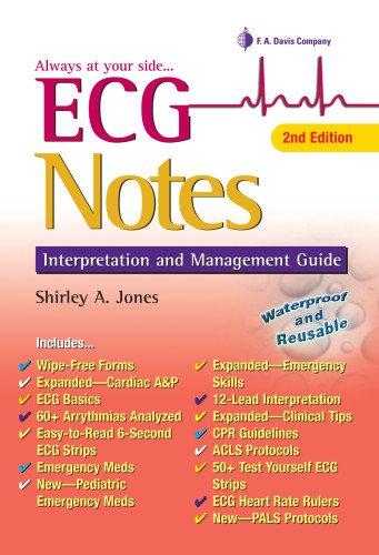 ECG Notes: Interpretation and Management Guide (Davis's...
