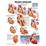 Heart Disease Anatomical Chart Laminated