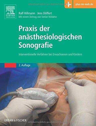 Praxis der an???sthesiologischen Sonografie: Interventionelle Verfahren bei Erwachsenen und Kindern - mit Zugang zum Elsevier-Portal by Ralf Hillmann (2016-05-17)