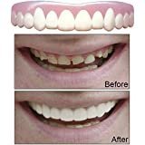 Imako Cosmetic Upper Teeth Fitted Temporary Smile Overlay. (Small, Natural)