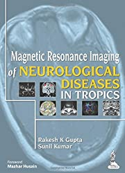 Magnetic Resonance Imaging of Neurological Diseases in Tropics
