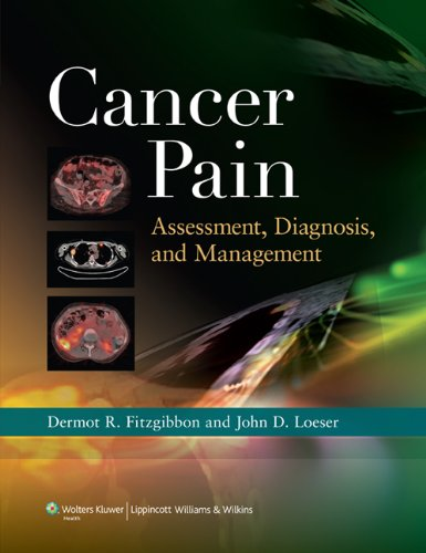 Cancer Pain: Assessment, Diagnosis, and Management, by Dermot R. Fitzgibbon MB  BCh, John D. Loeser MD
