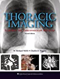 Thoracic Imaging: Pulmonary and Cardiovascular Radiology 2e