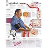 High Blood Pressure Disease Chart