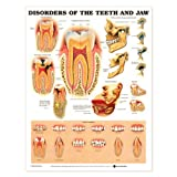 Disorders of the Teeth and Jaw Anatomical Chart Laminated