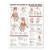 Anatomy and Injuries of the Hand and Wrist Anatomical Chart Plastic Styrene