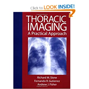 Thoracic Imaging: A Practical Approach