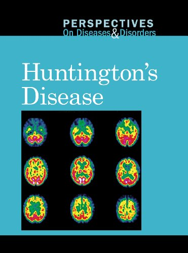 huntington disease overview The differential diagnosis of chorea syndromes may be complex it includes inherited forms, the most important of which is autosomal dominant huntington disease (hd.