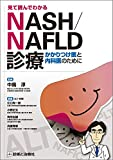 見て読んでわかるNASH/NAFLD診療―かかりつけ医と内科医のために