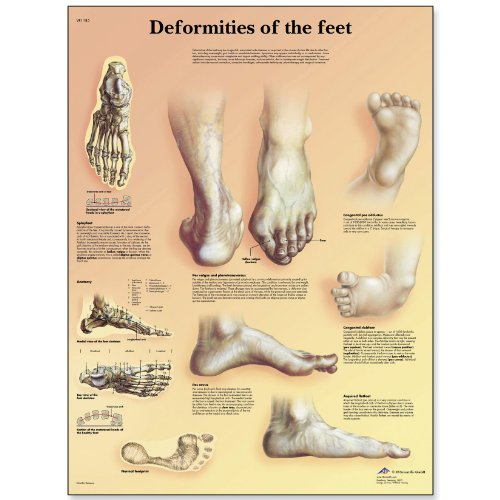 3B Scientific Glossy Paper Deformities of The Feet Anatomical Chart - 1
