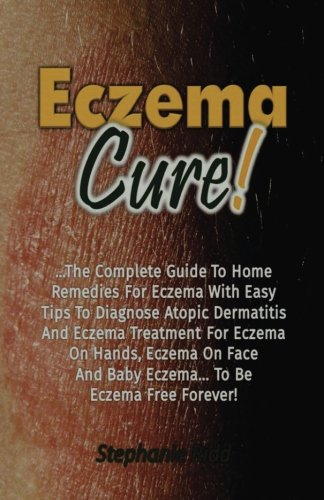 Eczema Cure!: The Complete Guide To Home Remedies For Eczema With Easy Tips To Diagnose Atopic Dermatitis And Eczema Treatment For Eczema On Hands, Eczema On Face And Baby Eczema... To Be Eczema Free