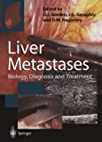 img - for Liver Metastases: Biology, Diagnosis and Treatment book / textbook / text book