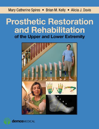 MPA, CPO, FAAOP, Brian Kelly, DO, Mary Catherine Spires, PT, MD  Alicia Davis - Prosthetic Restoration and Rehabilitation of the Upper and Lower Extremity