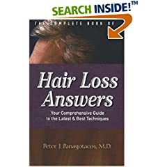 The Complete Book Of Hair Loss Answers: Your Comprehensive Guide To The Latest And Best Techniques