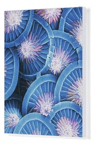 Canvas Print Of Acanthoica Acanthifera, Coccosphere From Mary Evans