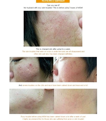 AcneRed-Trouble-and-Uneven-Skin-Tone-Skin-Msm-Ctrl-Set-Made-in-Korea-USA-Seller-100-Natural