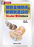 膀胱全摘除術と新膀胱造設術−Studer変法を究める