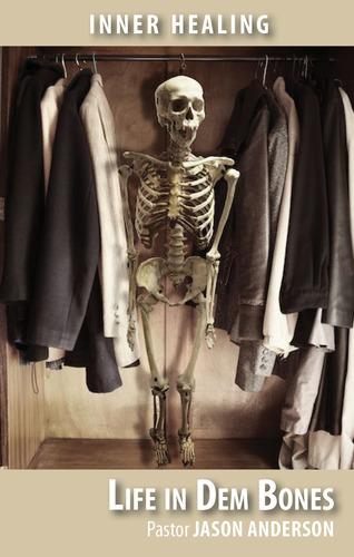 Life in Dem Bones