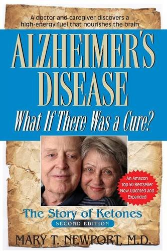 Buy Alzheimers Disease Now!