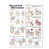 Hip and Knee Inflammations Anatomical Chart Laminated