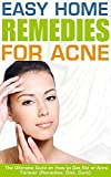 The Easy Home Remedies For Acne: The Ultimate Guild on How to Get Rid of Acne Forever (Remedies, Diet, Cure)