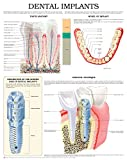 img - for Dental implants e chart: Full illustrated book / textbook / text book