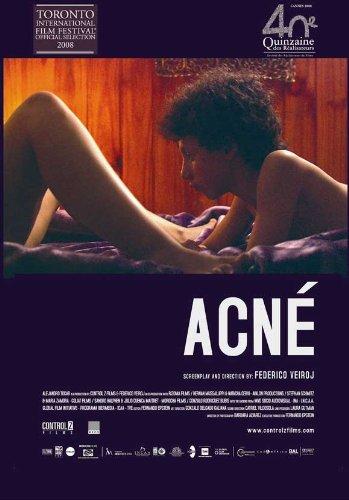 Acne - 映画ポスター - 27 x 40