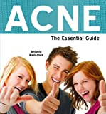 Acne: The Essential Guide (Need2Know Books)