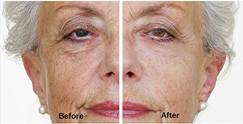 immaculift-serum-liftant-a-effet-tenseur-instantane-liftant-instantane-pour-les-yeux-elimination-des