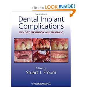 Dental Implant Complications: Etiology, Prevention, and Treatment