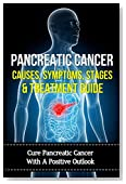 Pancreatic Cancer Causes, Symptoms, Stages & Treatment Guide: Cure Pancreatic Cancer With  A Positive Outlook