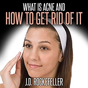 What Is Acne and How to Get Rid of It Audiobook