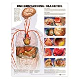 Understanding Diabetes Anatomical Chart Laminated