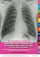 The Unofficial Guide to Radiology: Chest, Abdominal and Orthopaedic X Rays, Plus CTs, MRIs and Other Important Modalities: Core Radiology Curriculum. ... (Unofficial Guides to Medicine)