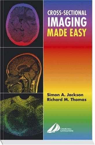 Cross-Sectional Imaging Made Easy, 1e