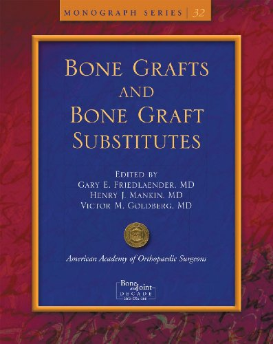 Bone Grafts And Bone Graft Substitutes (Monograph)