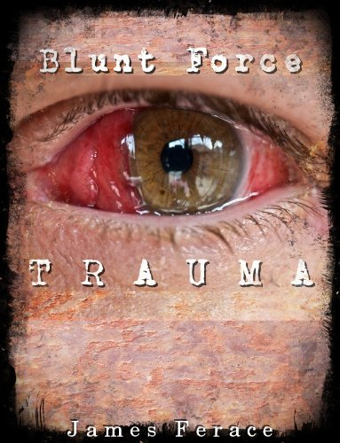 Blunt Force Trauma PDF