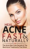 Heal Acne Fast & Naturally: Acne Skin Care Secrets & The Best Acne Treatments That Work