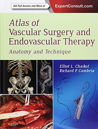 Atlas of Vascular Surgery and Endovascular Therapy: Anatomy and Technique, 1e
